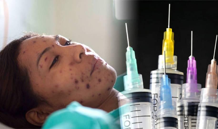 Sarampo-Vacinação