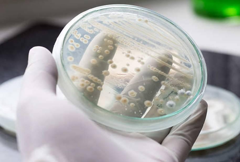 Superbactérias-Cândida-Auris