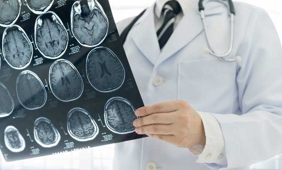 Tumores-Cerebrais-Tratamentos