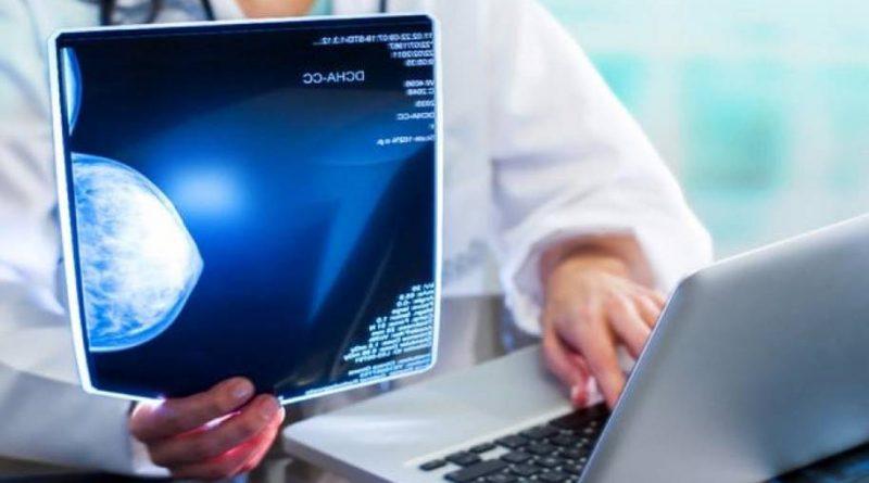 Câncer de mama e inteligência artificial