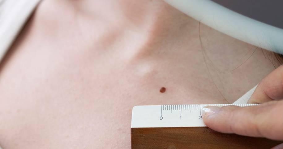 Câncer de pele - diametro