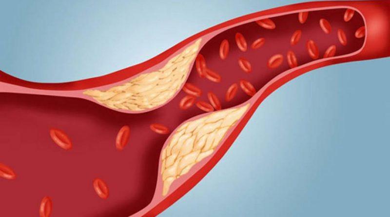 Colesterol Ruim - LDL