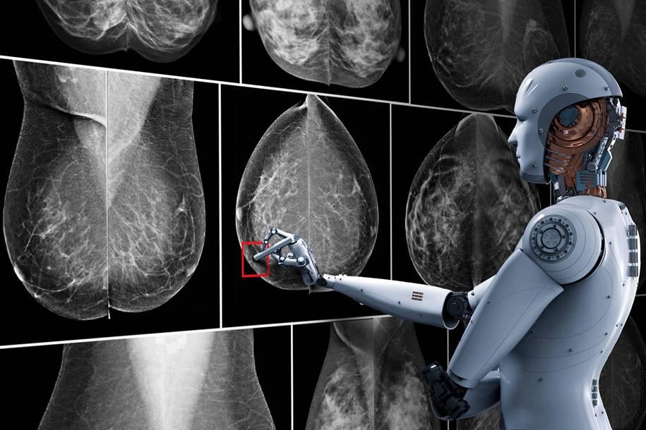 Inteligência Artificial para tratar o Câncer de mama