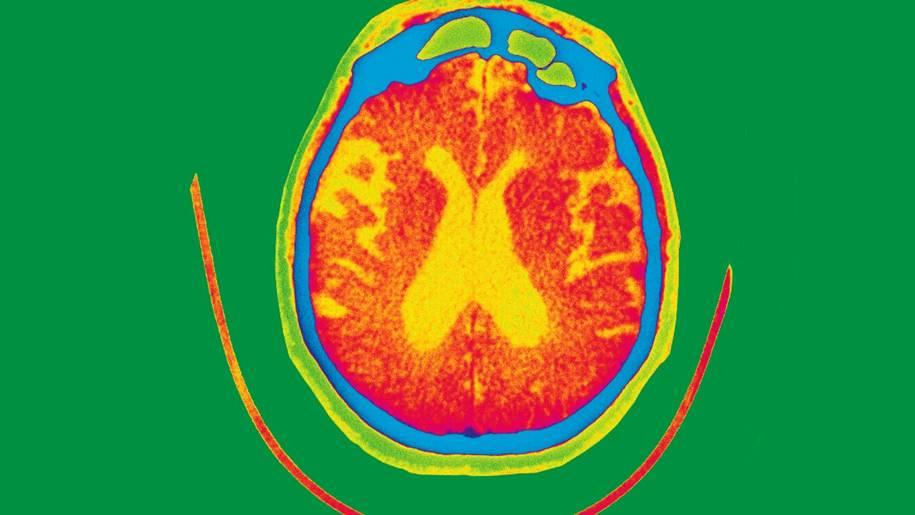 Pesquisa de Alzheimer e tratamentos
