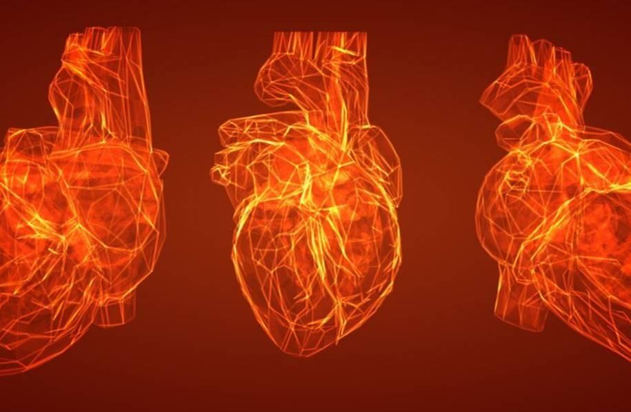 Ressonância magnética e para cardíaca fatal