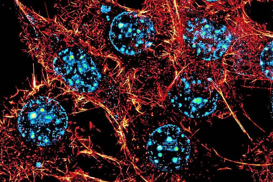 células do corpo conectadas como chips