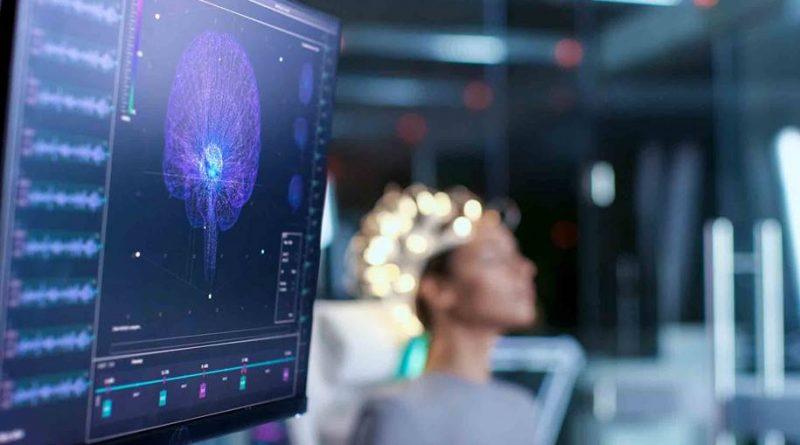 Algorítimo capaz de detectar aneurismas cerebrais