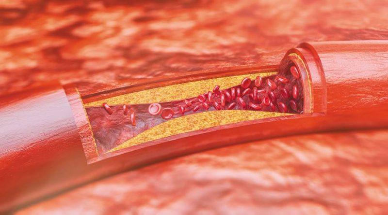 Aterosclerose - Identificado as causas e potencial tratamento