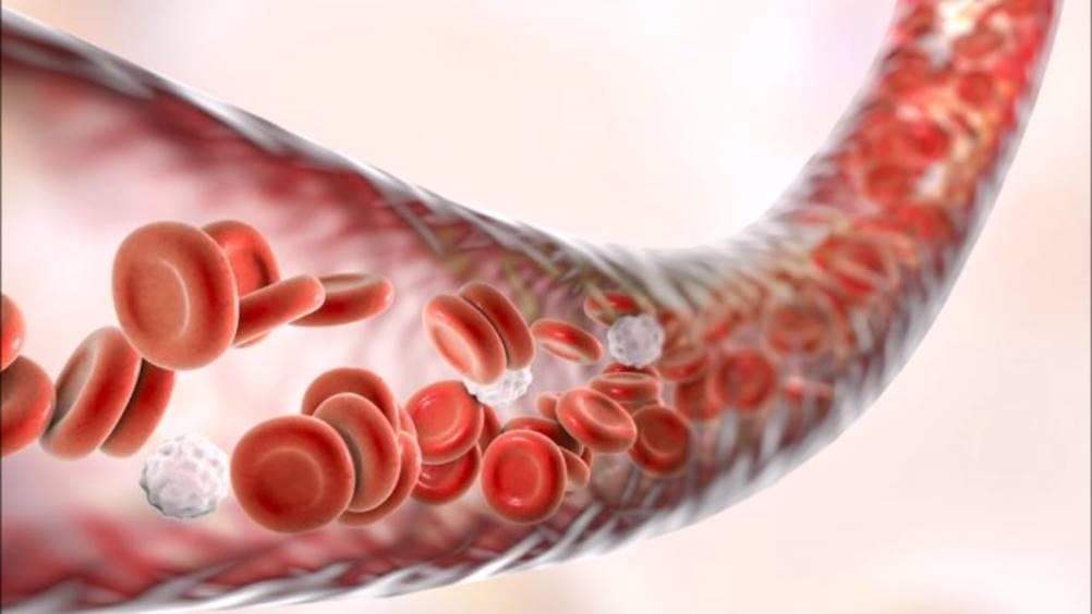 Aterosclerose - potencial tratamento