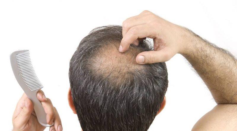 Combater a perda de cabelo