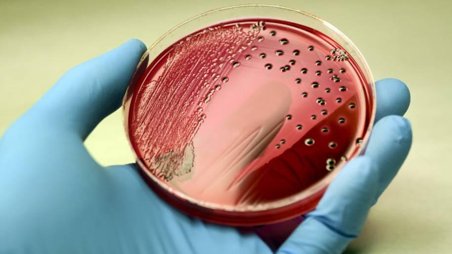 Nova Salmonella resistente a antibióticos