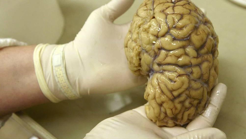 Porcos ajudam os cientistas a entender o cérebro humano
