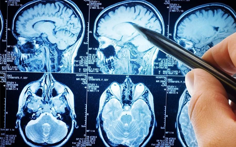 causas da esclerose múltipla