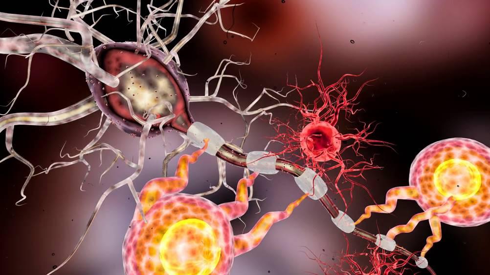 Esclerose lateral amiotrófica - novo gene-chave ideintificado