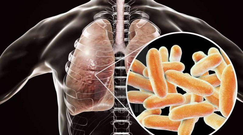 Legionella - nova toxina na bactéria causa pneumonia