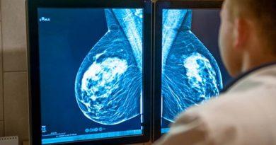 Tratamento para câncer de mama - congelamento do tecido canceroso