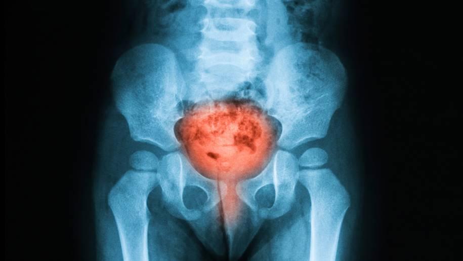 Vírus de Coxsackie para o tratamento do câncer de bexiga