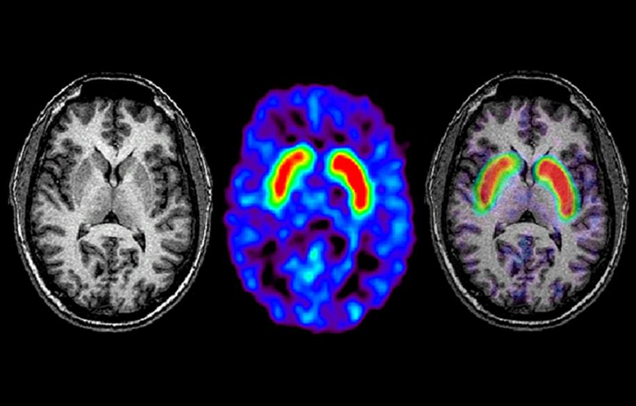 A RM automatizada pode com precisão diagnosticar o mal de Parkinson