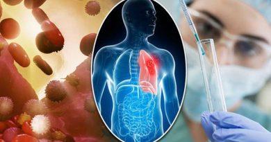 Descoberta nova estratégia de tratamento para câncer de pulmão