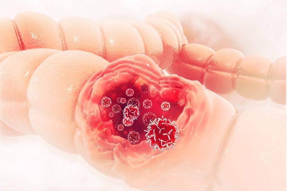 MYC - Estudo identifica um calcanhar de Aquiles de muitos tipos de câncer