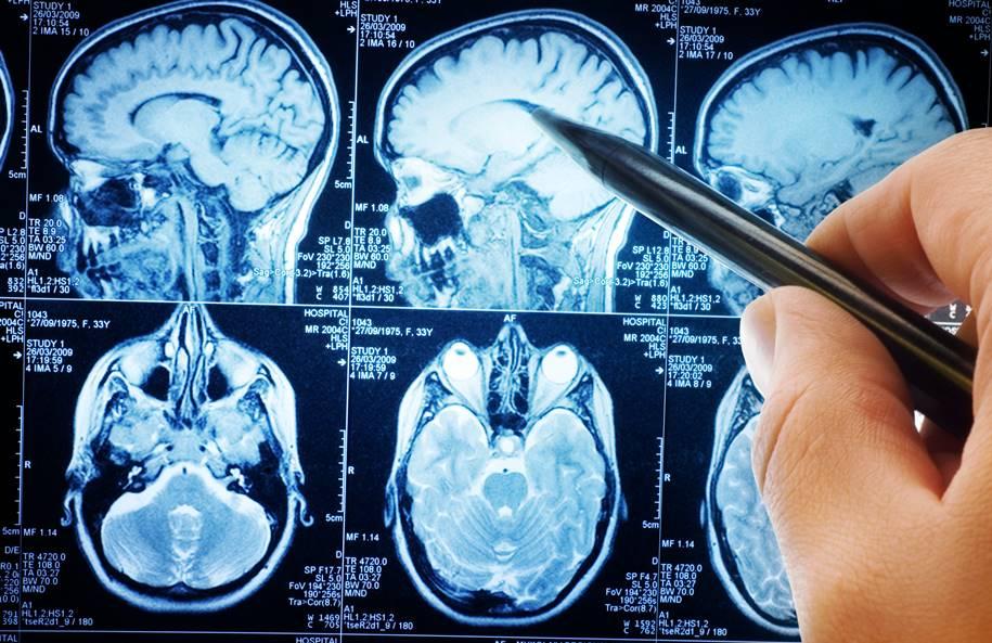 Pesquisador decodifica o cérebro humano em pacientes com doenças mentais