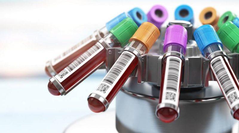 Teste de plasma promissor para o diagnóstico precoce de Alzheimer