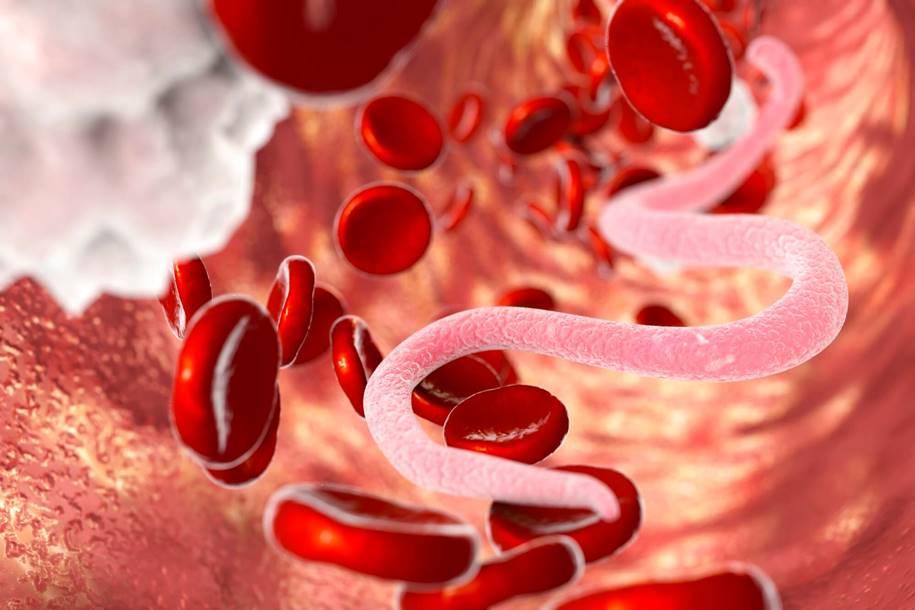 Alterações moleculares associadas ao tratamento da filariose linfática