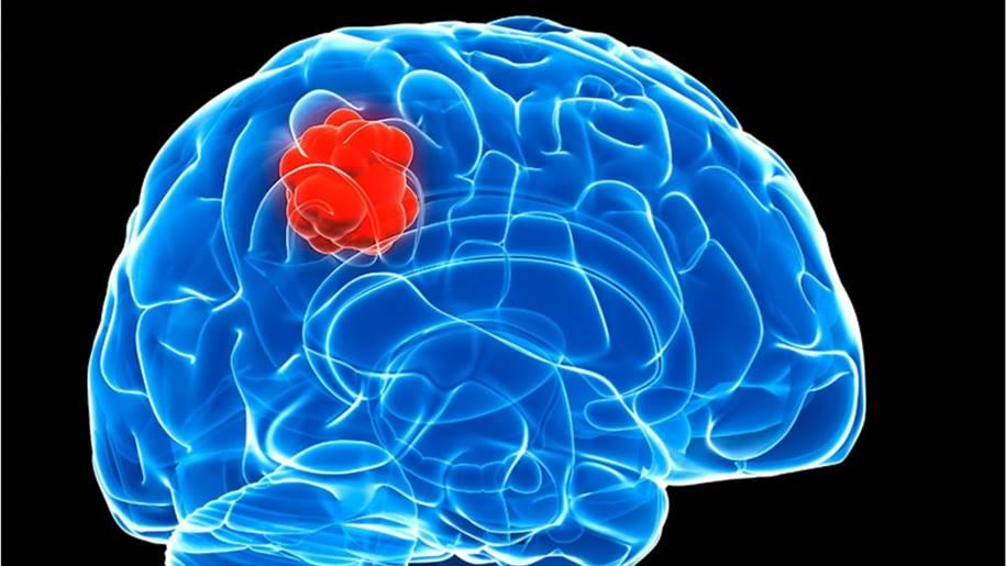 Medicamento para leucemia é promissor no tratamento de câncer de cérebro