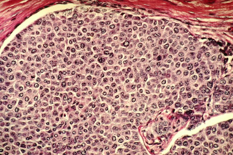 células cancerígenas movendo-se pelo corpo