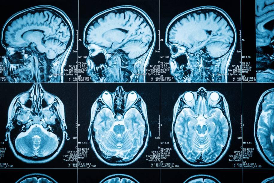Estudo explica possíveis causas da depressão