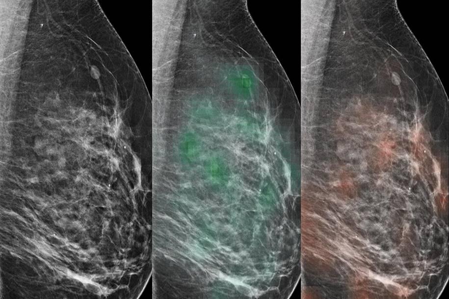 IA e radiologistas pode identificar o câncer de mama com mais precisão