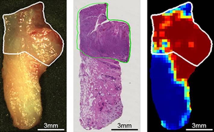 Microscópio cirúrgico hiperespectral ver células do câncer