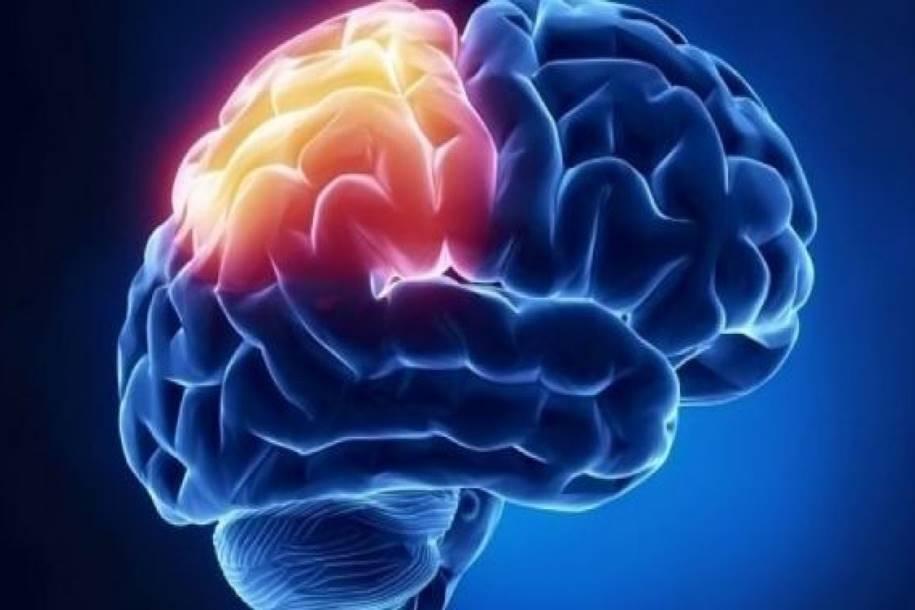 Droga para epilepsia inibe desenvolvimento de tumor cerebral infantil