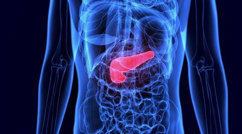 Medicamentos podem ser uma alternativa ao câncer de pâncreas
