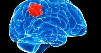 Nova maneira de combater o neuroblastoma infantil