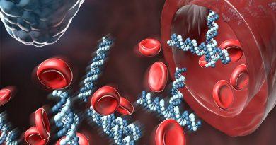IA detecta leucemia mielóide aguda com alta taxa confiabilidade