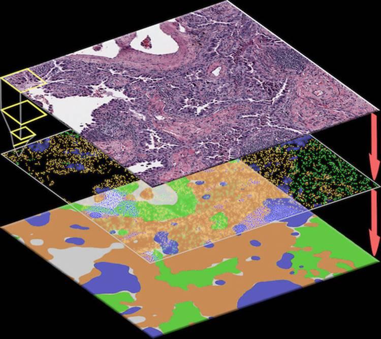 Nova ferramenta de IA para ajudar a identificar células cancerígenas