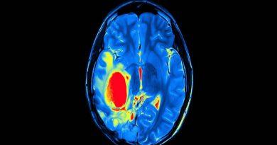 Novo tratamento pode impedir tumores cerebrais mortais