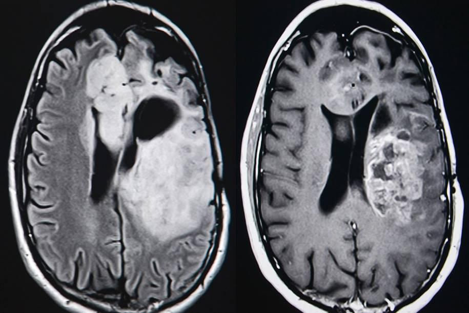 Tratamento pode impedir tumores cerebrais mortais
