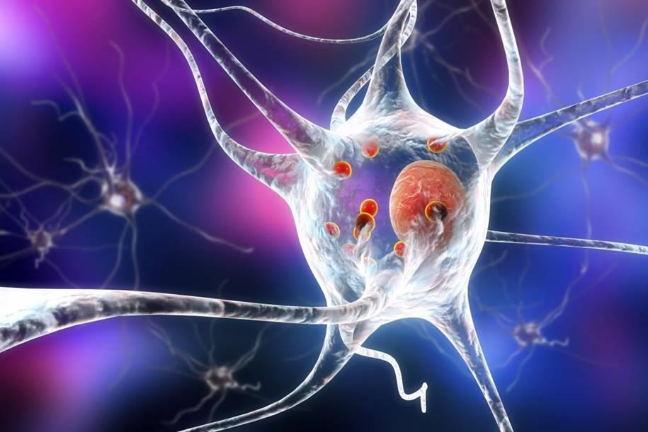 A doença de Parkinson começa antes do nascimento