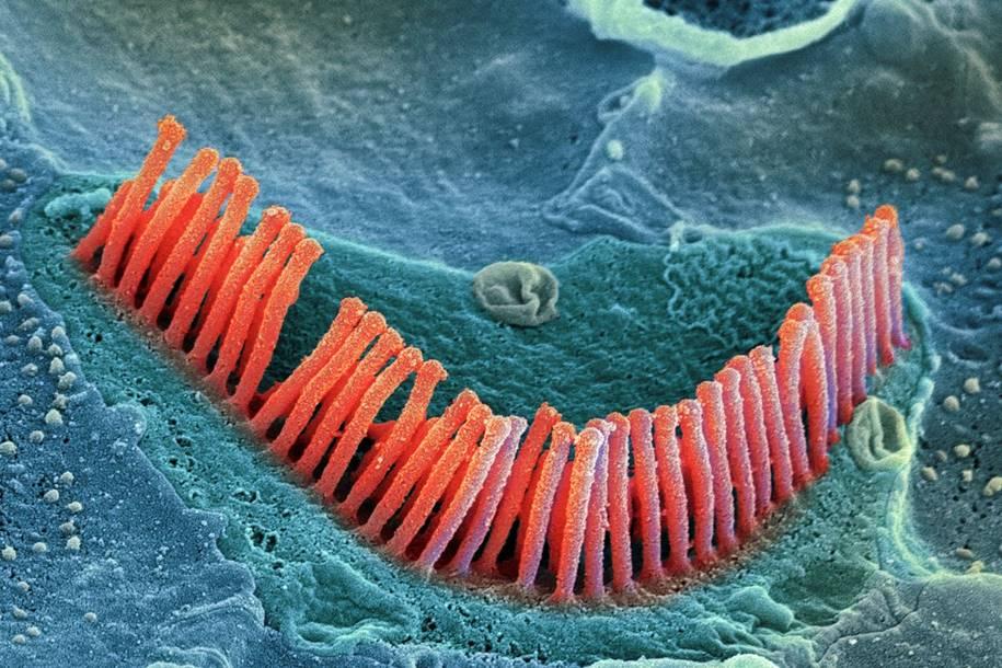 As Células ciliadas pode ser a chave para a perda de audição
