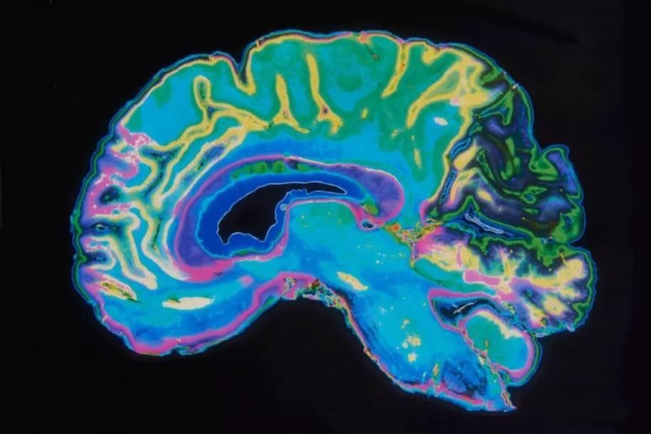 Danos no DNA pode causar a macrocefalia no autismo