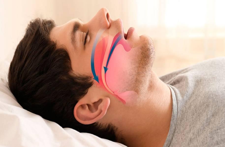 Redução da gordura da língua pode melhorar a apneia do sono