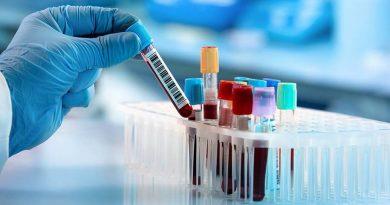 Pesquisadores Mais próximos de identificar células-tronco leucêmicas