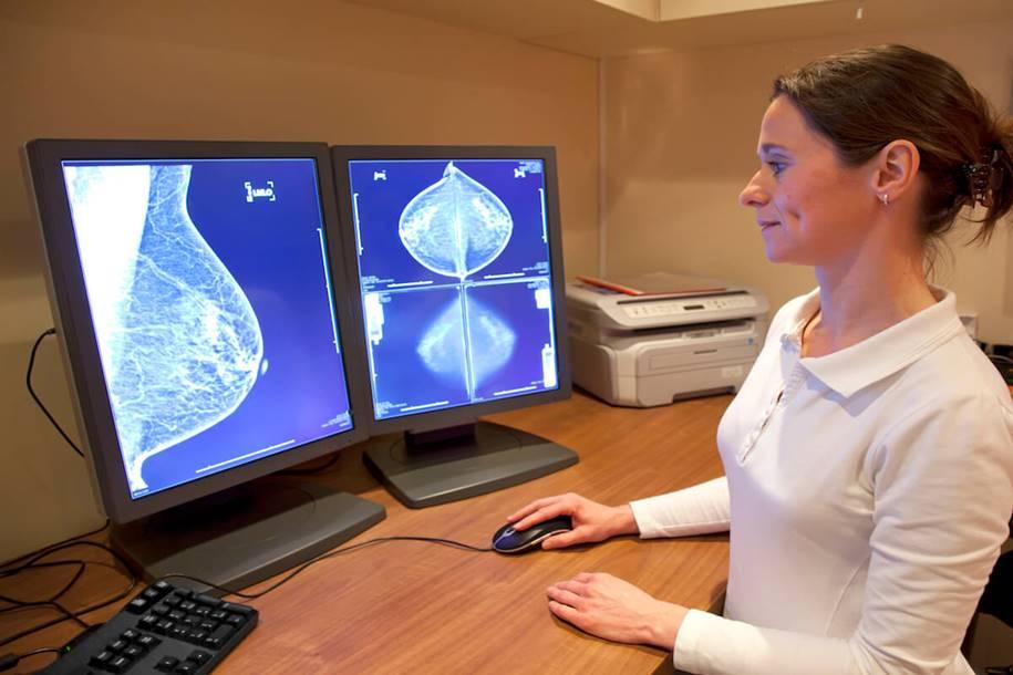 Radiação poderá causar câncer de mama triplo-negativo