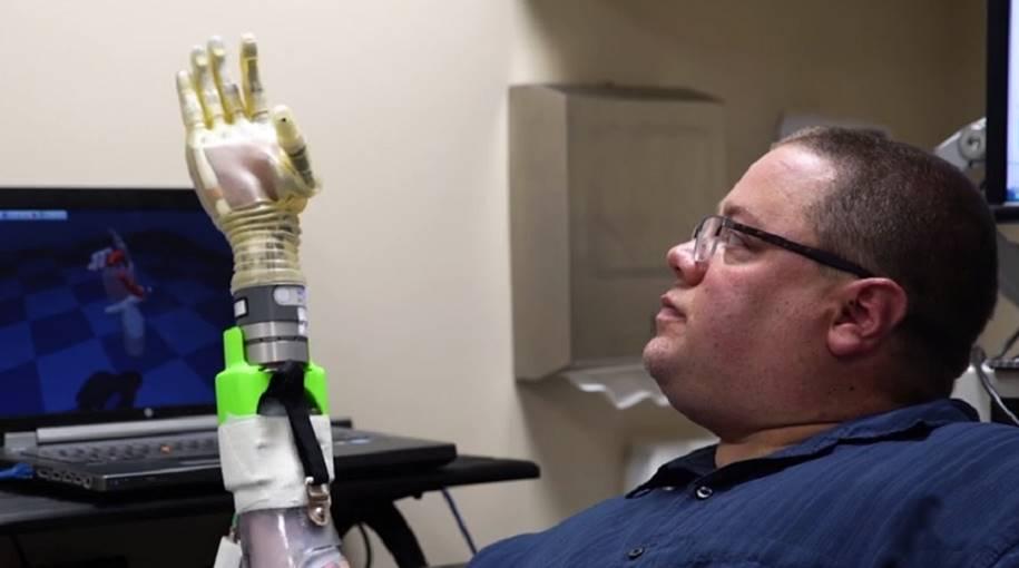 Desenvolvida super prótese controlada pela mente e ultra-precisa