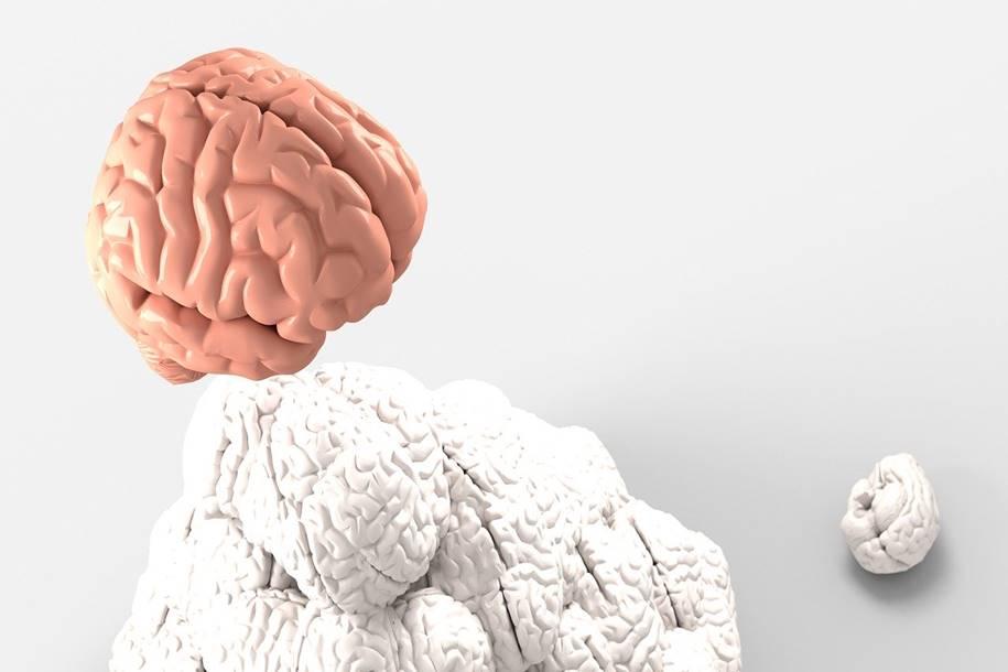 Glioblastomas 3D técnica encontra tumores cerebrais malignos