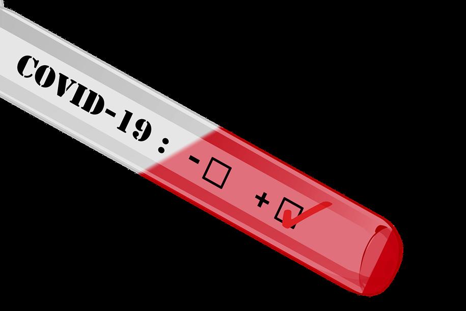 Laboratório dos EUA divulga teste portátil de COVID-19 em 5 minutos
