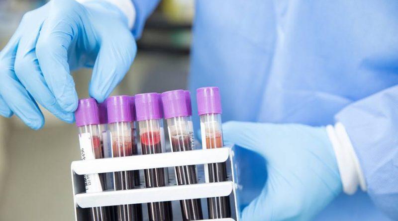 Novo teste para COVID-19 pode dar resultados em menos de 1 hora