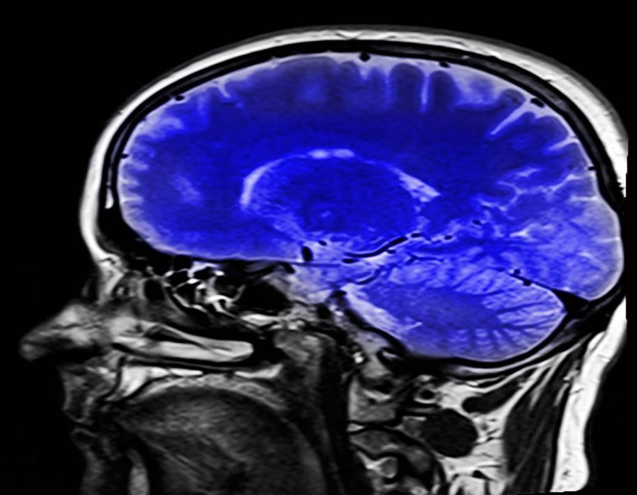 Mapas tumorais esclarece dúvidas sobre tumores cerebrais